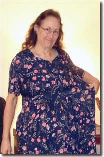 Barbara After Gastric Bypass Surgery