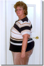 before gastric bypass surgery