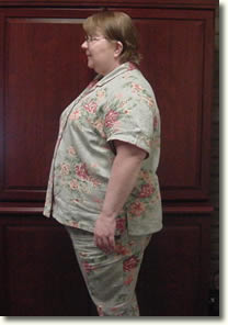 Eulema before gastric bypass photo
