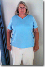 Weight Loss Surgery Patient Before and After